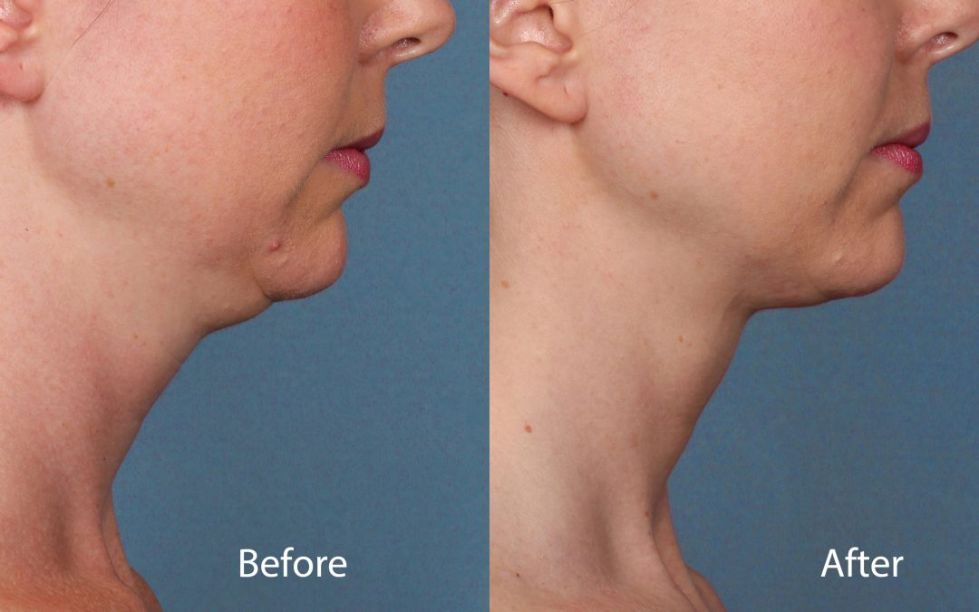 Is this the end of the double chin? US Food and Drugs Administration approves first injectable drug to tackle submental fullness