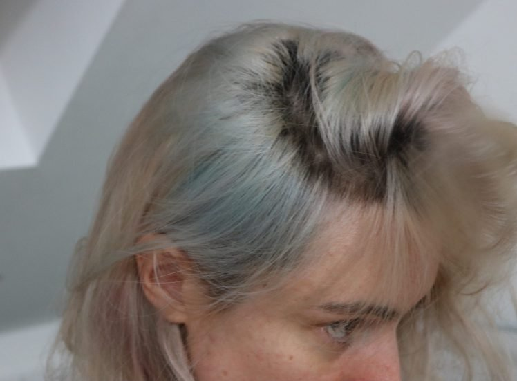L'Oréal faces social media backlash after Colorista dye turns hair green