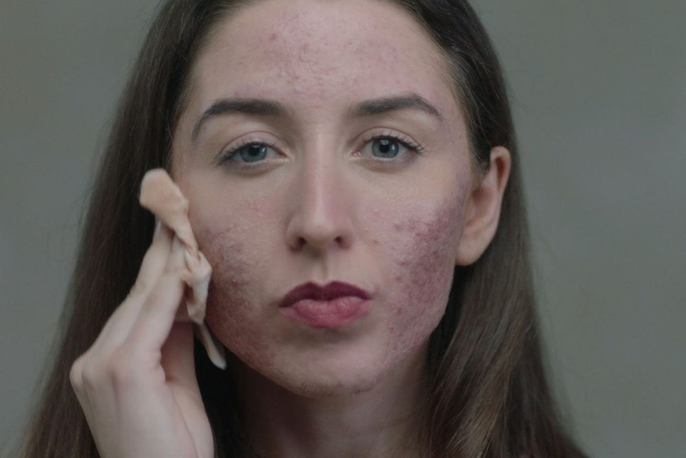 BBC THREE SHOW 'Skin' raises awareness of skin conditions such as eczema and acne